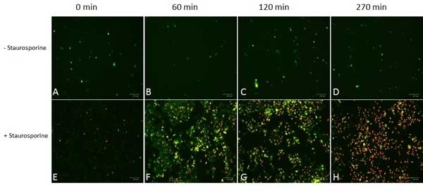 pSIVA™ REAL-TIME Apoptosis Fluorescent Microscopy Kit gallery image 1