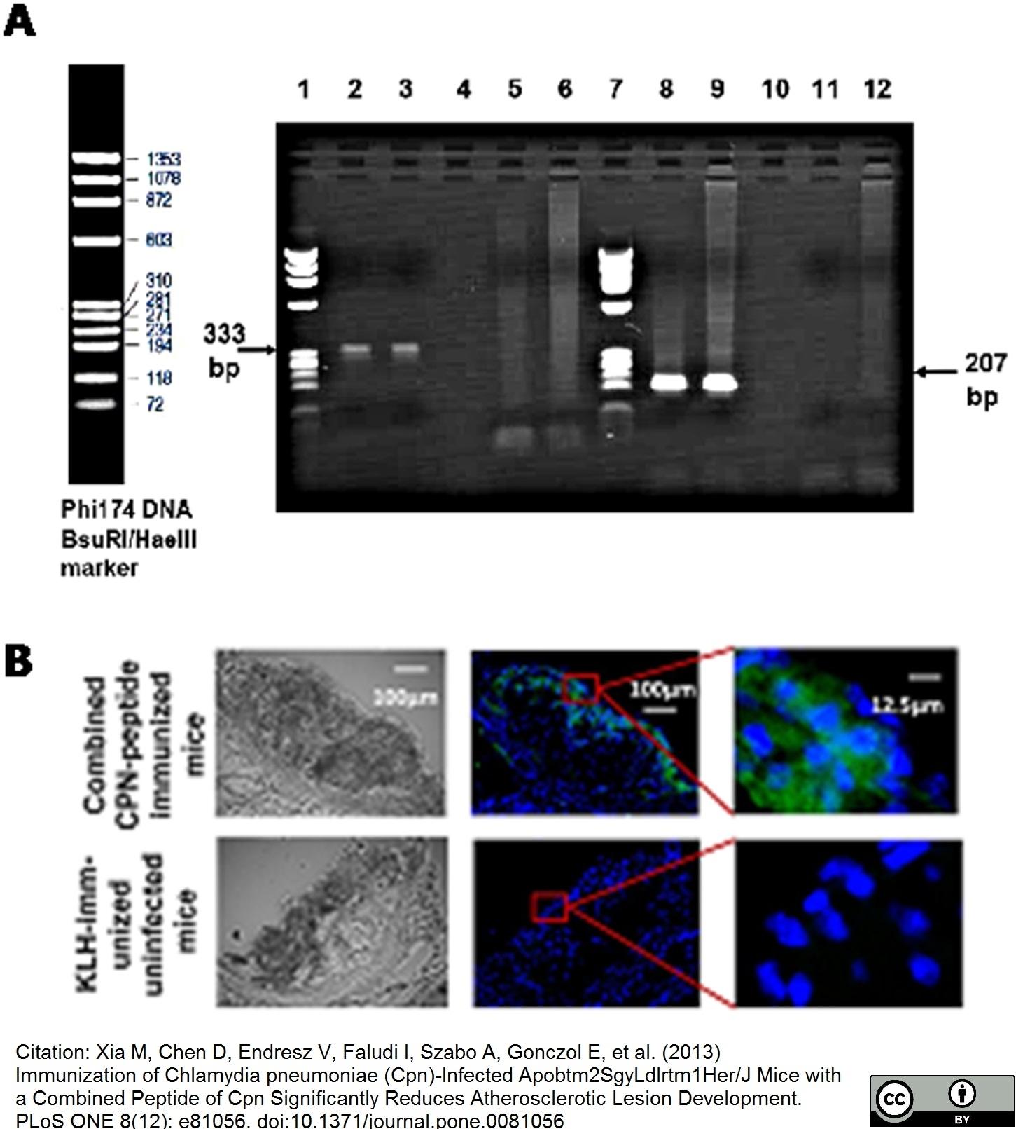 Anti Chlamydia LPS Antibody, clone CF 6J12 gallery image 1