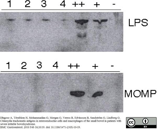 Anti Chlamydia trachomatis LPS Antibody, clone 1312/236 gallery image 1
