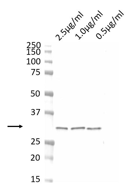 Anti CDK4 Antibody, clone DCS-31.2 thumbnail image 1
