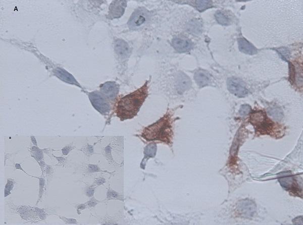 Anti Chicken CD34 Antibody, clone AV138 thumbnail image 2