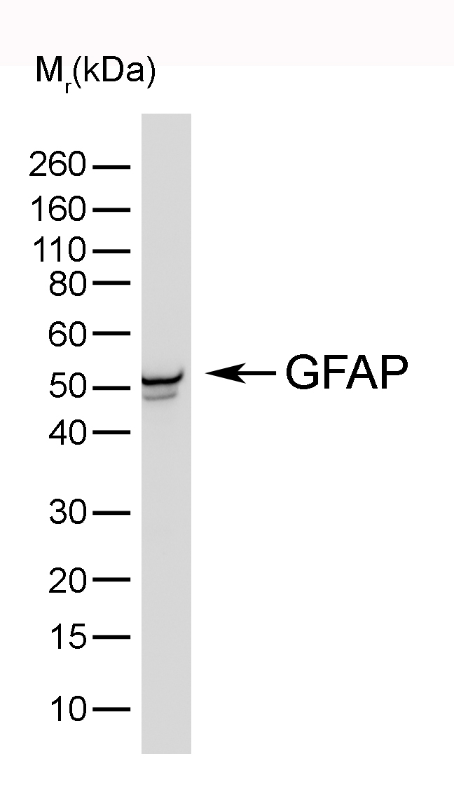 Anti Bovine GFAP Antibody, clone 4A11 gallery image 1