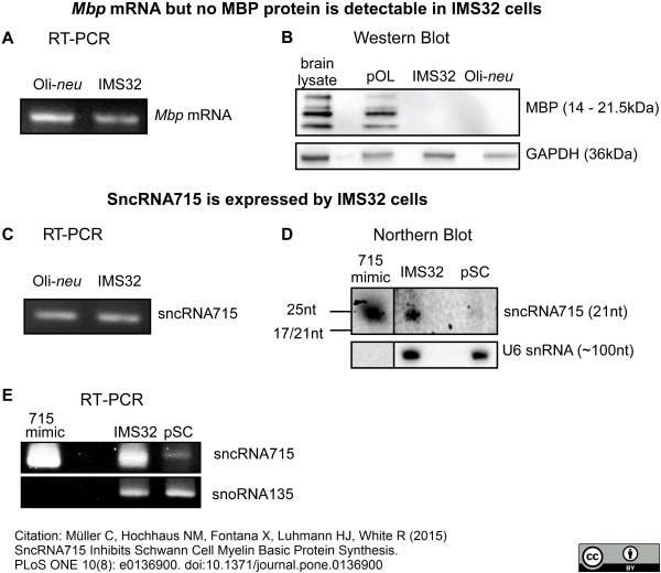 Anti MBP (aa82-87) Antibody, clone 12 thumbnail image 10