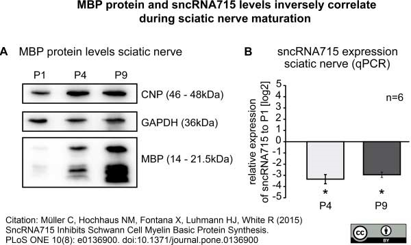 Anti MBP (aa82-87) Antibody, clone 12 thumbnail image 12