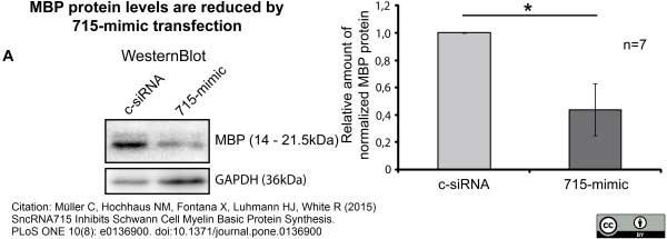 Anti MBP (aa82-87) Antibody, clone 12 thumbnail image 13