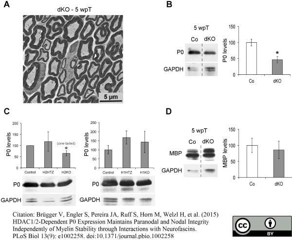 Anti MBP (aa82-87) Antibody, clone 12 thumbnail image 17