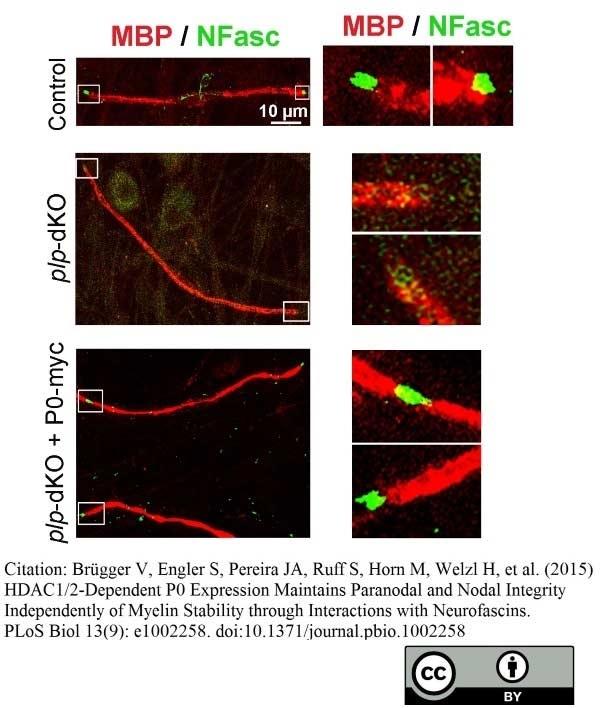 Anti MBP (aa82-87) Antibody, clone 12 thumbnail image 19