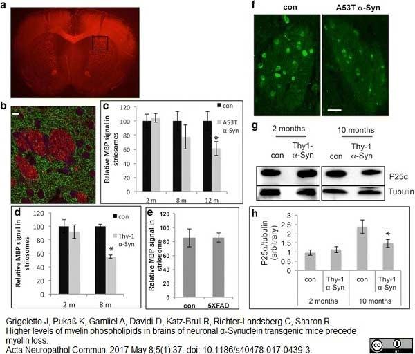 Anti MBP (aa82-87) Antibody, clone 12 thumbnail image 22