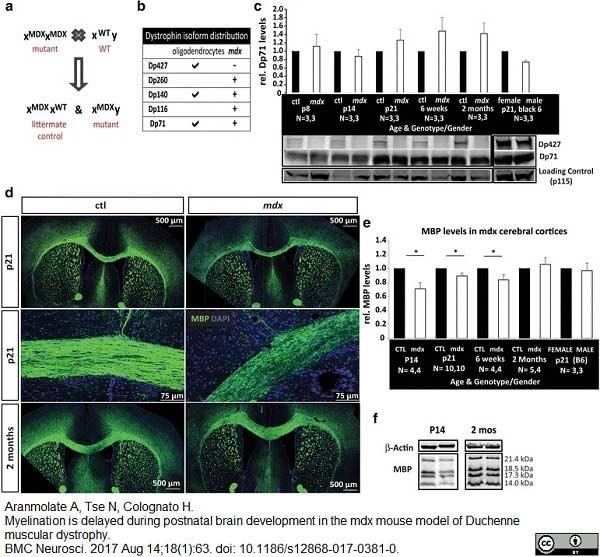 Anti MBP (aa82-87) Antibody, clone 12 thumbnail image 27