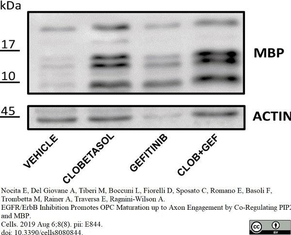 Anti MBP (aa82-87) Antibody, clone 12 thumbnail image 30