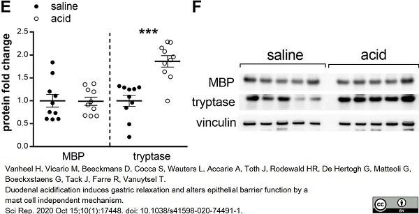 Anti MBP (aa82-87) Antibody, clone 12 thumbnail image 34