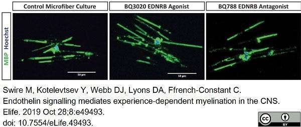 Anti MBP (aa82-87) Antibody, clone 12 thumbnail image 35