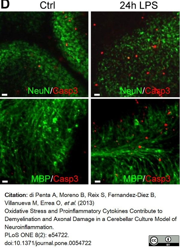 Anti MBP (aa82-87) Antibody, clone 12 thumbnail image 38