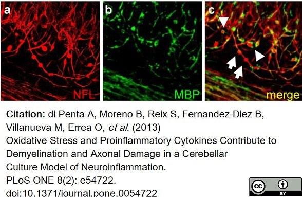 Anti MBP (aa82-87) Antibody, clone 12 thumbnail image 39