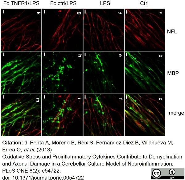 Anti MBP (aa82-87) Antibody, clone 12 thumbnail image 40