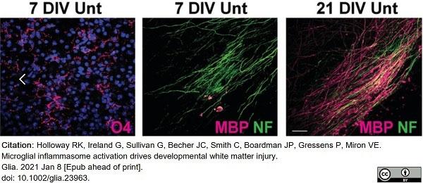 Anti MBP (aa82-87) Antibody, clone 12 thumbnail image 48