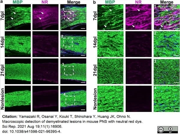 Anti MBP (aa82-87) Antibody, clone 12 thumbnail image 52