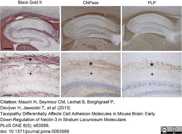 Anti Myelin Proteolipid Protein Antibody, clone plpc1 thumbnail image 16