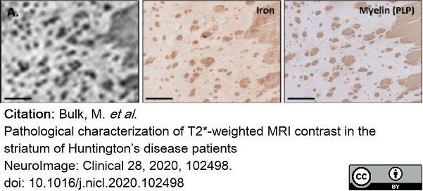Anti Myelin Proteolipid Protein Antibody, clone plpc1 thumbnail image 19