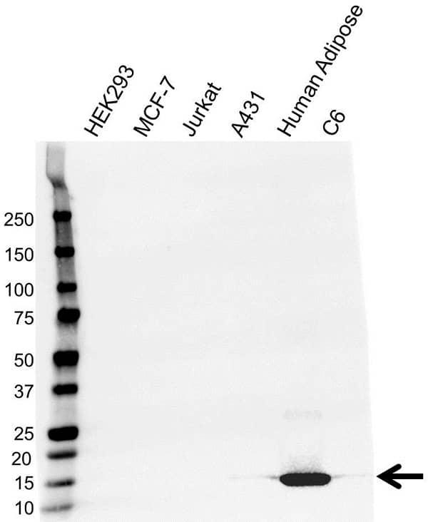 Anti A-FABP Antibody (PrecisionAb Monoclonal Antibody) gallery image 1