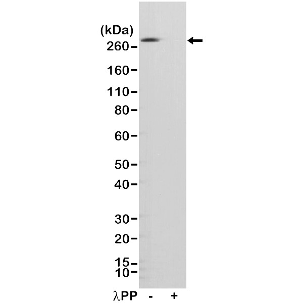 Anti Acetyl Coa Carboxylase (pSer79) Antibody, clone RM270 (PrecisionAb Monoclonal Antibody) thumbnail image 1