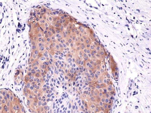 Anti Acetyl Coa Carboxylase (pSer79) Antibody, clone RM270 (PrecisionAb Monoclonal Antibody) thumbnail image 2