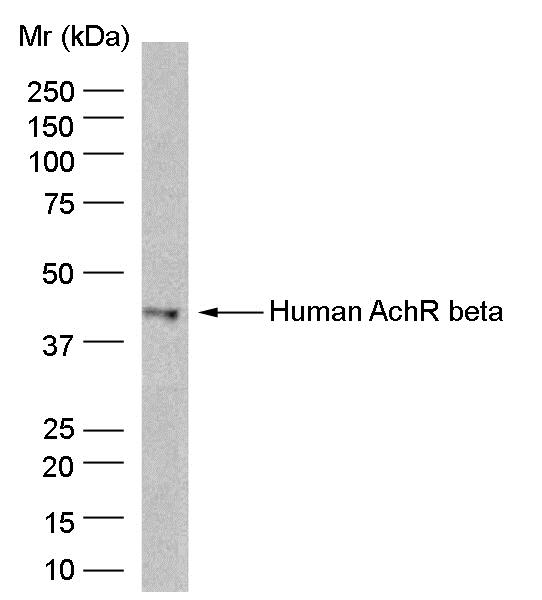 Anti Human Acetylcholine Receptor Beta Antibody, clone B3 gallery image 1
