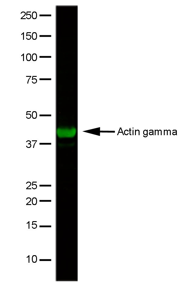 Anti Human Actin Gamma Antibody, clone 2A3 gallery image 1