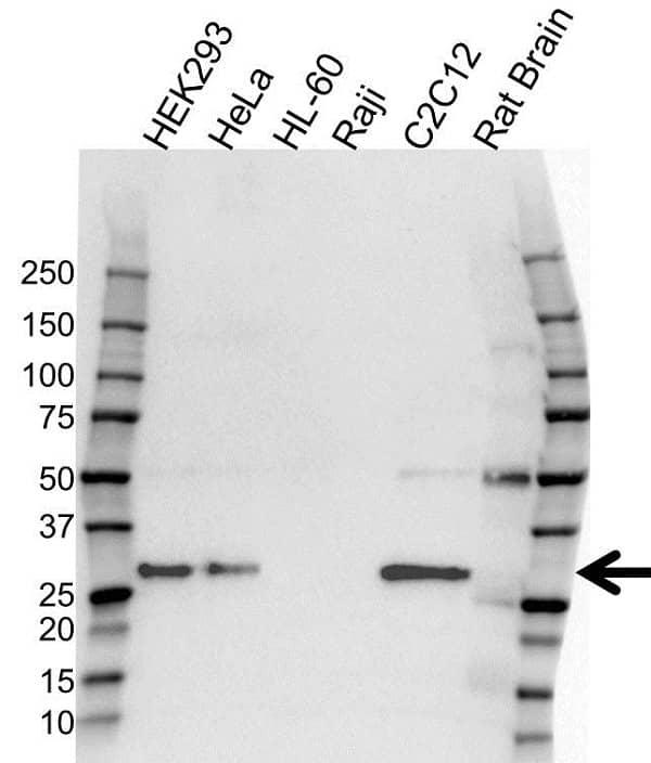 Anti Adiponectin Antibody, clone OTI7B11 (PrecisionAb Monoclonal Antibody) gallery image 1