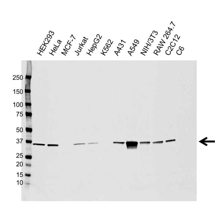 Anti AKR1B1 Antibody, clone CPTC28 (PrecisionAb™ Monoclonal Antibody) gallery image 1
