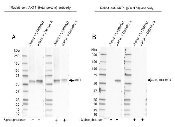 Anti Akt (pSer473) Antibody, clone RM251 (PrecisionAb Monoclonal Antibody) thumbnail image 3