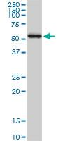 Anti Human AKT1 Antibody, clone 6F11 thumbnail image 1