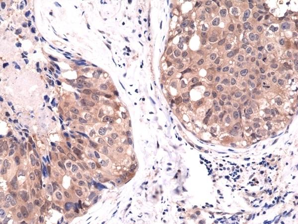 Anti AKT1 Antibody, clone RM252 thumbnail image 2