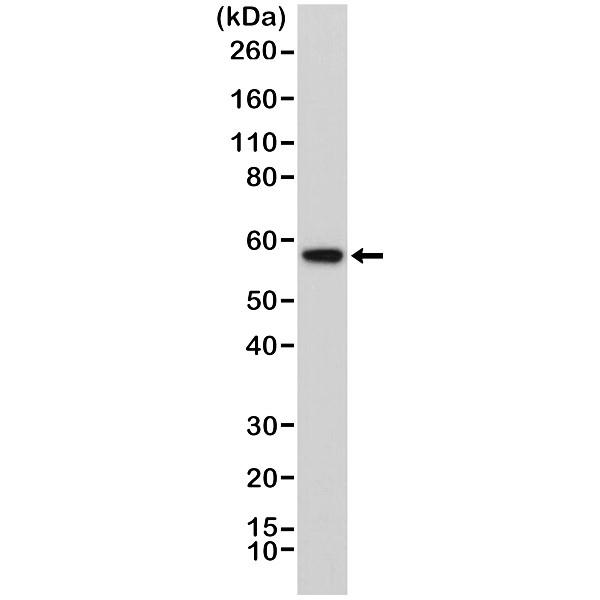 Anti AKT1 (Ph Domain) Antibody, clone RM316 thumbnail image 1