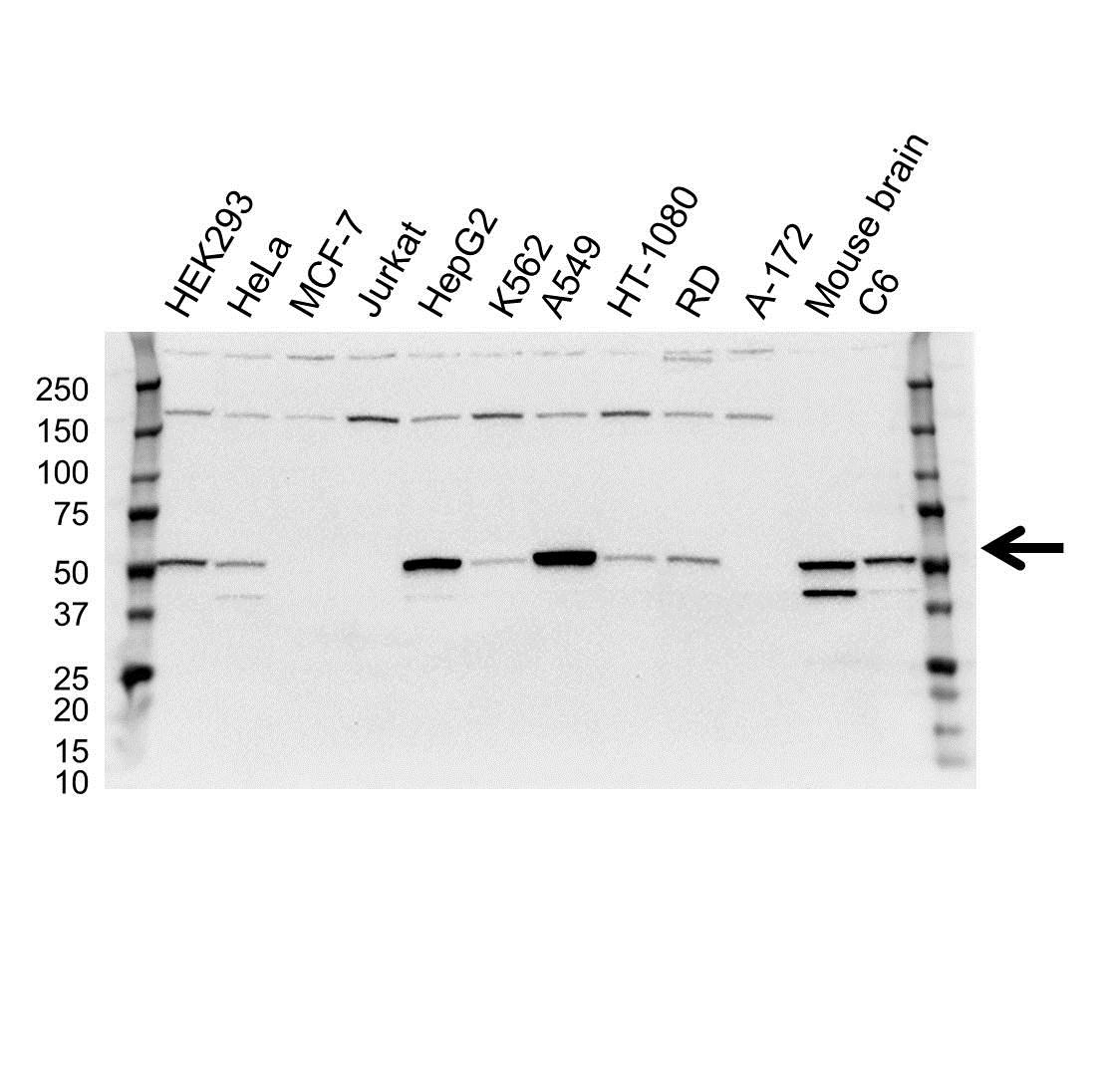 Anti Aldehyde Dehydrogenase 2 Antibody (PrecisionAb Monoclonal Antibody) gallery image 1