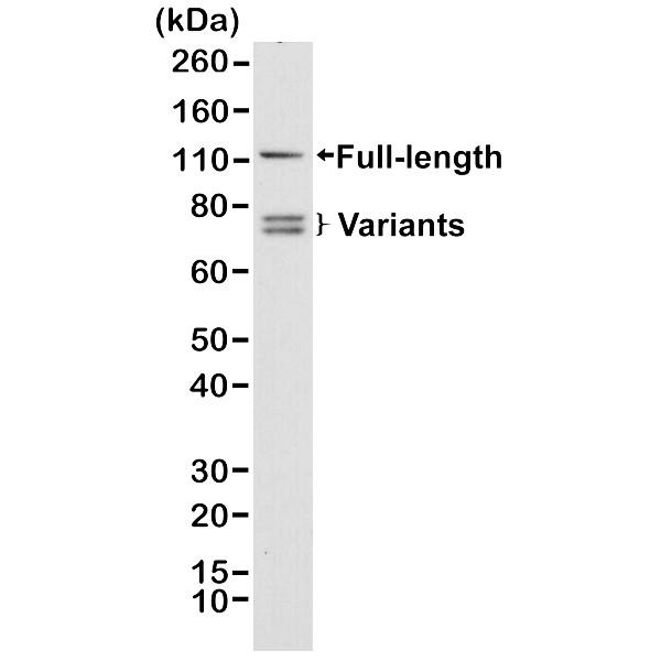 Anti Androgen Receptor Antibody, clone RM254 thumbnail image 1