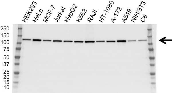 Anti ATP Citrate Lyase Antibody (PrecisionAb Monoclonal Antibody) gallery image 1