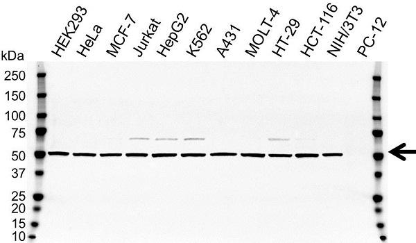 ATP5B Antibody (PrecisionAb Antibody)|OTI1F7|VMA00114
