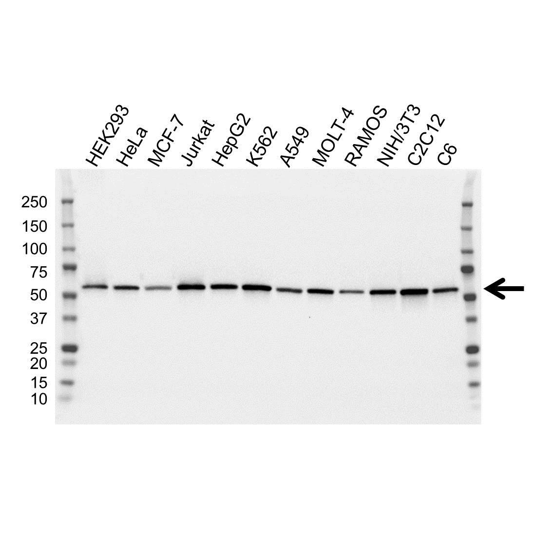 Anti ATP6V1B2 Antibody, clone OTI1E11 (PrecisionAb Monoclonal Antibody) gallery image 1