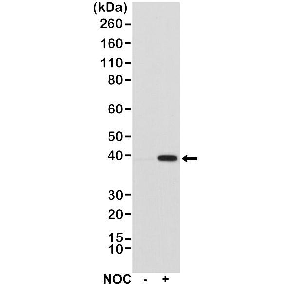 Anti Aurora-B Kinase Antibody, clone RM278 thumbnail image 1