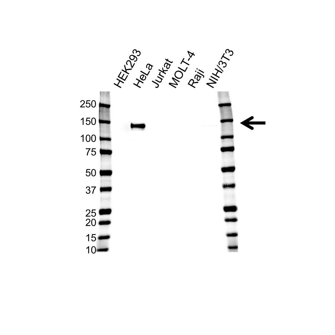 Anti AXL Receptor Tyrosine Kinase Antibody, clone 7E10 (PrecisionAb Monoclonal Antibody) gallery image 1