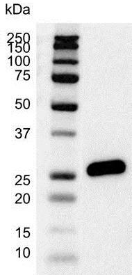 Anti Human Bcl-2 Antibody, clone 100 thumbnail image 3