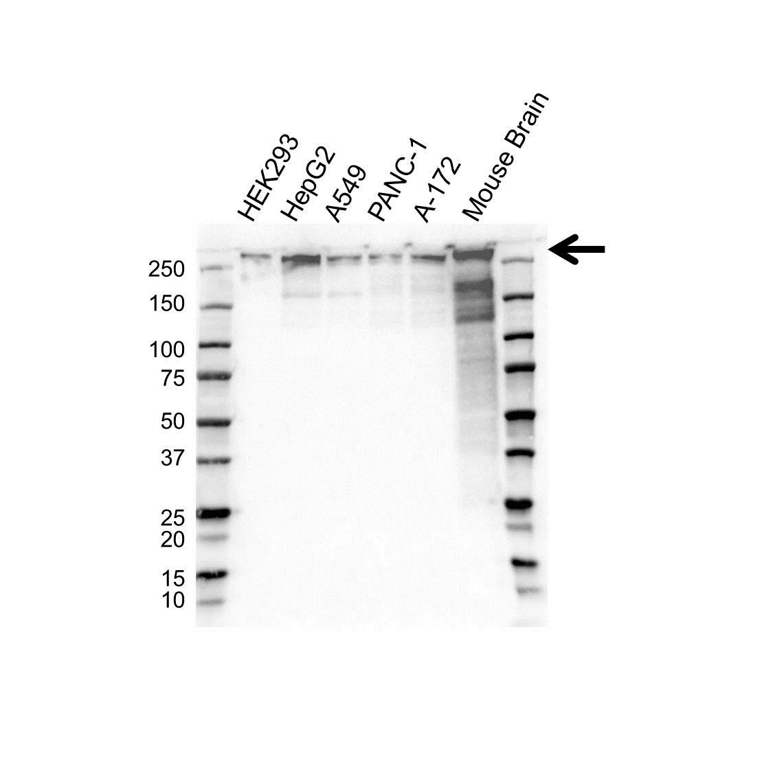 Anti BETA-III Spectrin Antibody (PrecisionAb Monoclonal Antibody) gallery image 1