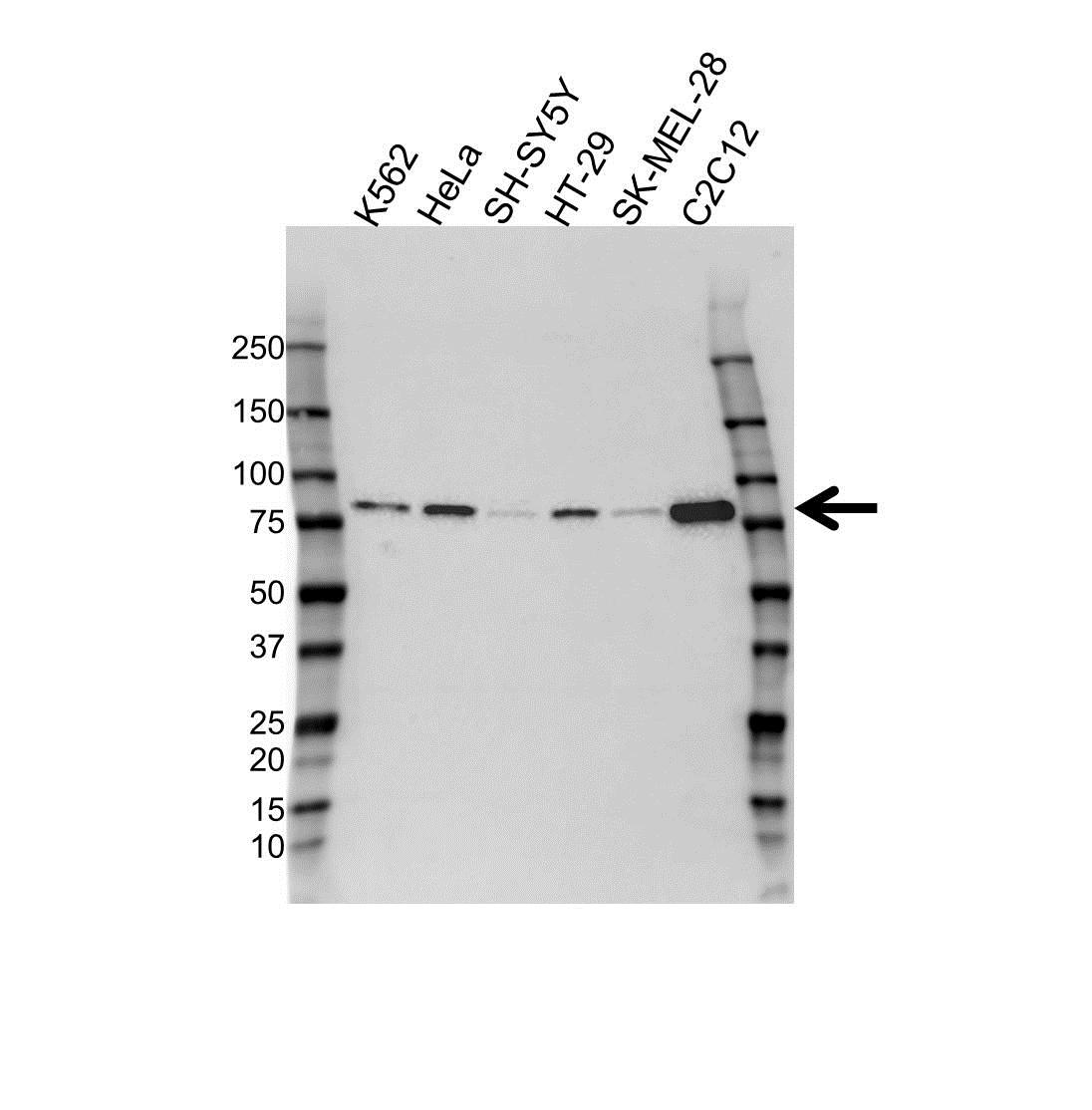 Anti Braf Antibody, clone OTI4B2 (PrecisionAb™ Monoclonal Antibody) gallery image 1