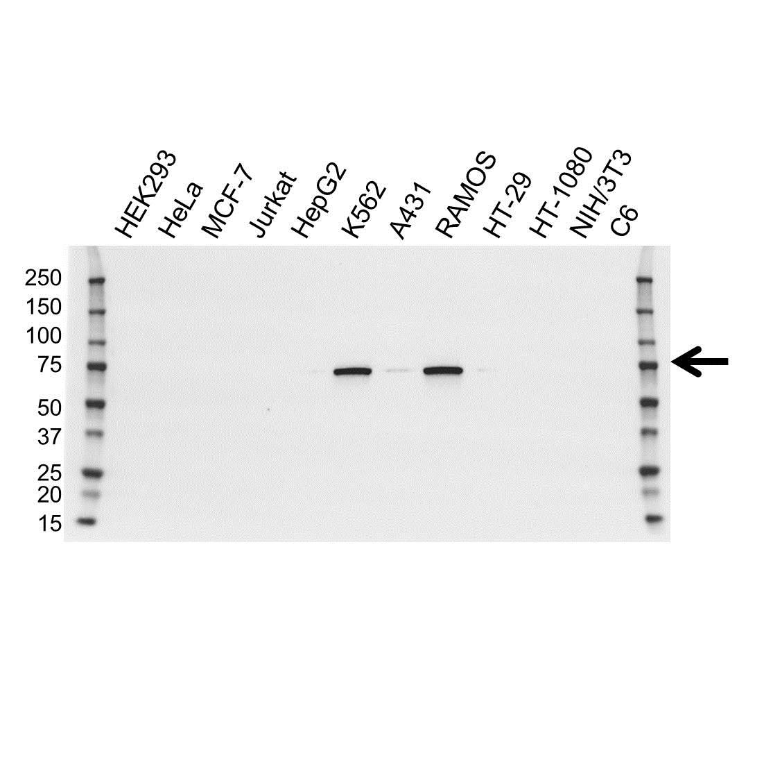 Anti BTK Antibody, clone OTI12D4 (PrecisionAb™ Monoclonal Antibody) gallery image 1