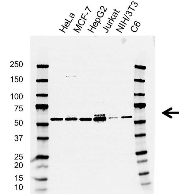 Anti Btrc Antibody, clone AB02/4E2 (PrecisionAb Monoclonal Antibody) gallery image 1
