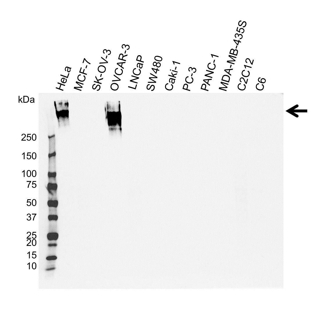 Anti CA125 Antibody (PrecisionAb™ Monoclonal Antibody) gallery image 1