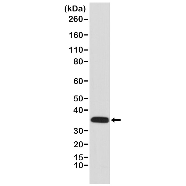 Anti Calponin 1 Antibody, clone RM262 thumbnail image 1