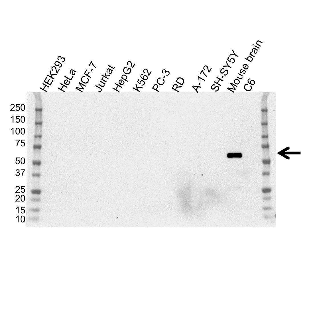 Anti CaMK II Gamma Antibody (PrecisionAb™ Monoclonal Antibody) gallery image 1
