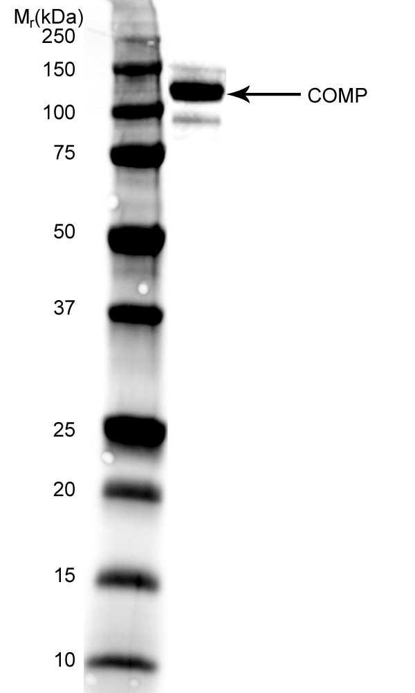 Anti Human Cartilage Oligomeric Matrix Protein Antibody, clone MA37C94 (HC484D1) thumbnail image 1